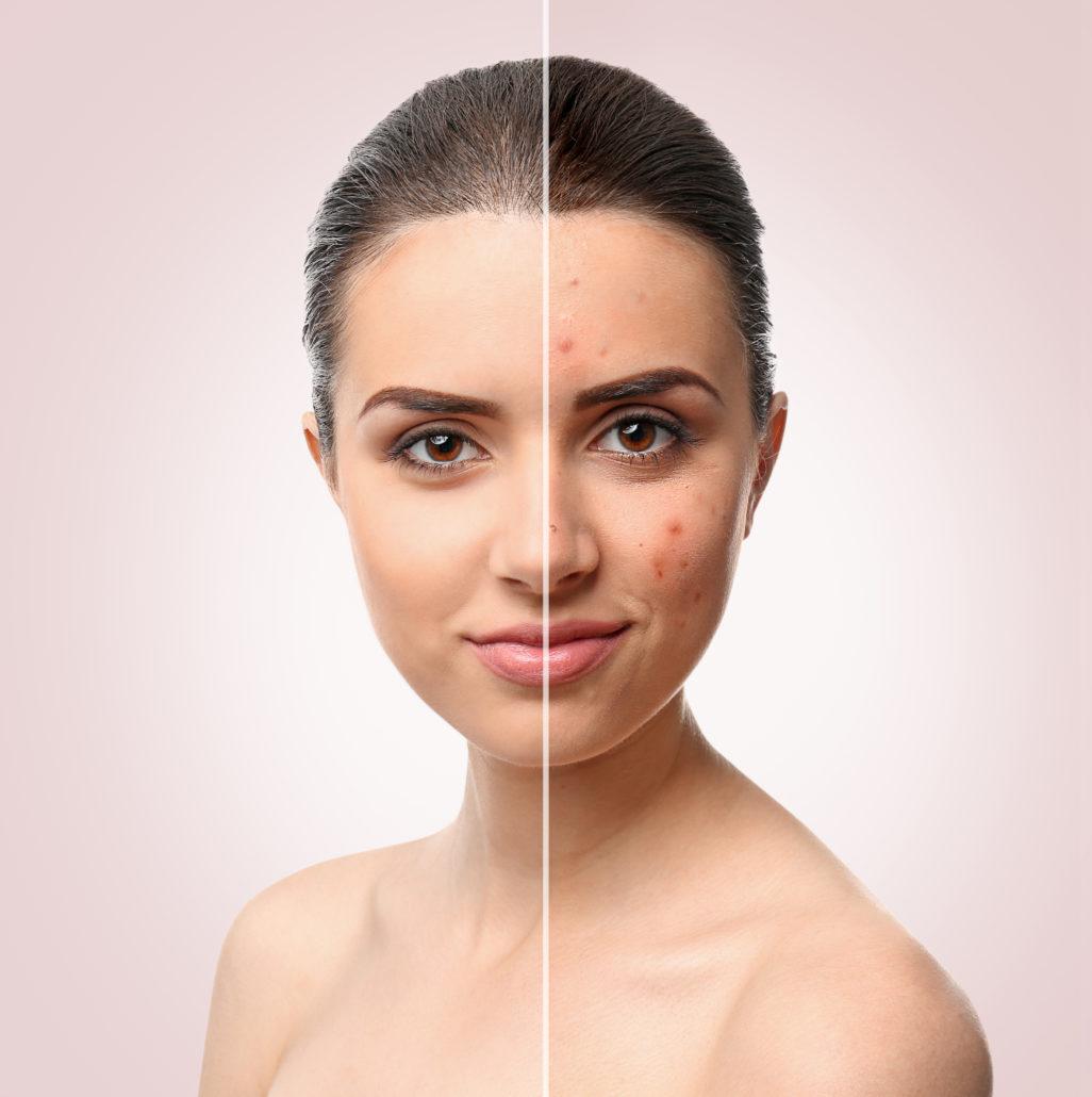 acne voor en na