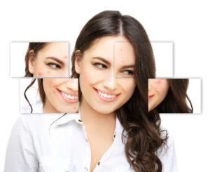acne littekens gezicht