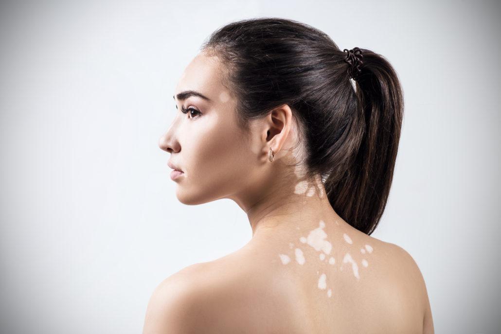 Hypopigmentatie - Vitiligo