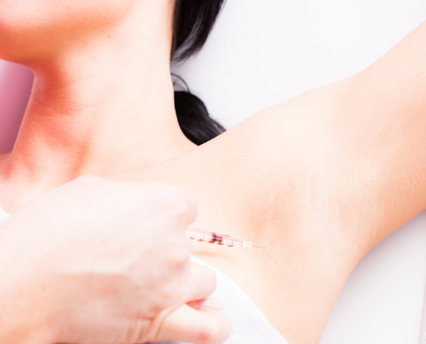 anti-transpiratie-botox-behandeling-oksel