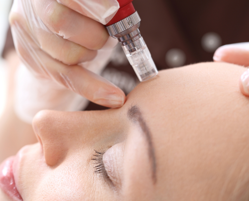 microneedling voorhoofd close up