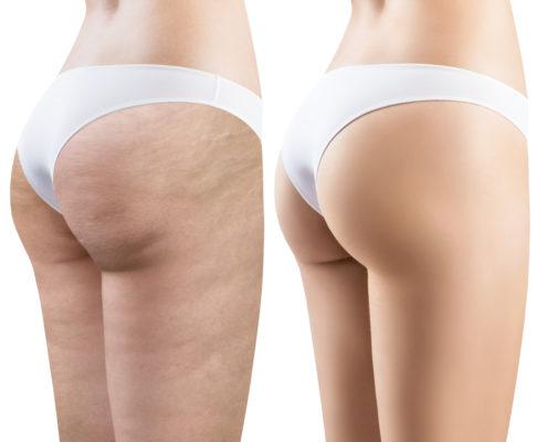 Cellulite voor en na