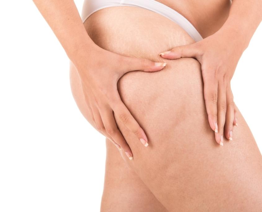 cellulite verwijderen met DIAMOND behandeling
