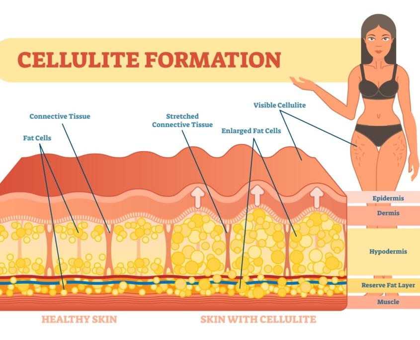 diamond cellulite - uitleg opbouw cellulite