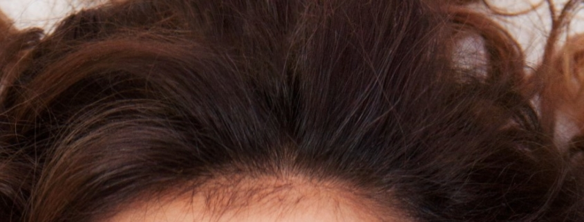 shampoo-producten-tegen-haaruitval